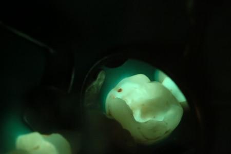 Grüngelbe völlig gesunde Dentinanteile im aufgebohrtem Zahn mit einer ROTEN Stelle, die Kariesaktivität anzeigt und entfernt werden muss