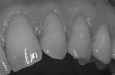 Typischer Zahnfleischrückgang im Sinne einer Putzdruck vermittelten Rezession an den Zahnhälsen