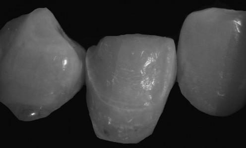 Zahn im beschliffenen Zustand für die Aufnahme eines Veneers (Foto im Hintergrund reduziert zur Hervorhebung des Zahnes)