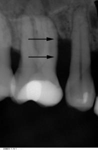 Regeneration statt Zahnextraktion