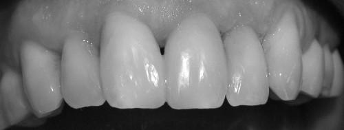 Statt die Defekte durch Kronen wiederherzustellen, konnten sie durch Kompositfüllungen von Karies befreit und in ihrer Form wieder ästhetisch hergestellt werden - bei maximaler Schonung der Zahnsubstanz im gegensatz zum invasiven Beschleifen für Kronen